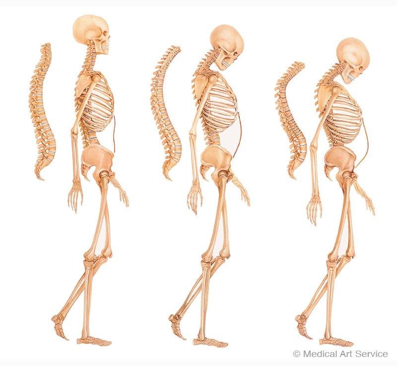 Wirbelsaeulenveraenderungen bei Osteoporose