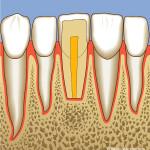 Zahnreihe, Wurzelspitzenresektion
